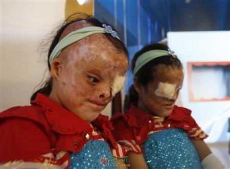 伊拉克儿童身上的战争之伤